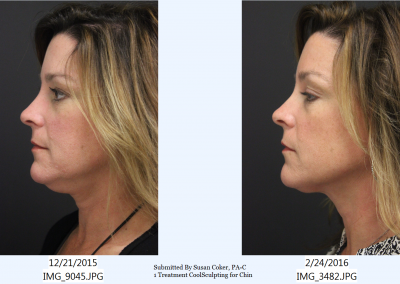 CoolSculpting-Chin-1-treatment