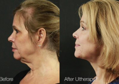 Ultherapy (1)