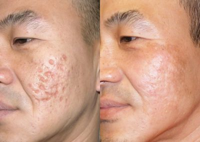 dermapen for acne scars before and after New Microagulhamento para tratar Cicatriz de Acne FIT BODY