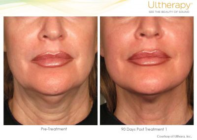ultherapy-before-and-after