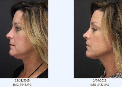 CoolSculpting-Chin-1-treatment