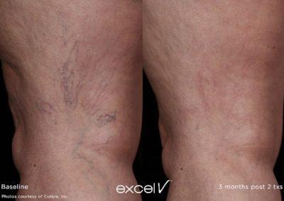 excelv+legs