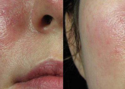 vbeam-pulse-dye-laser-face-veins